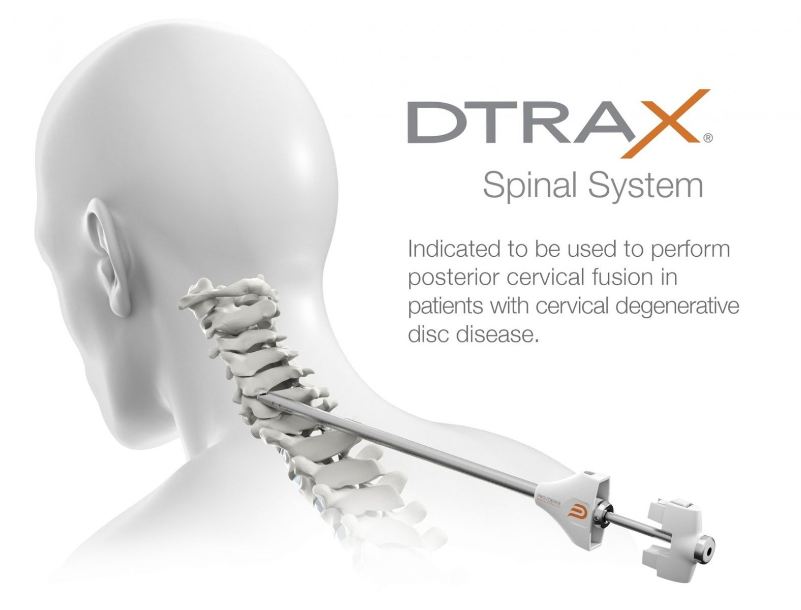Providence Medical Technology DTRAX Spinal System