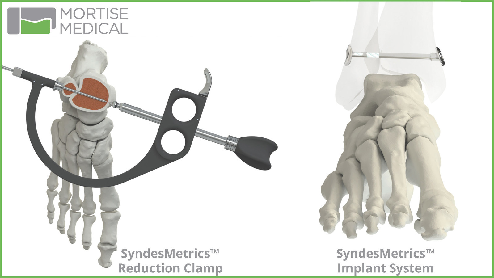 Mortise Medical SyndesMetrics for Syndesmosis Repair