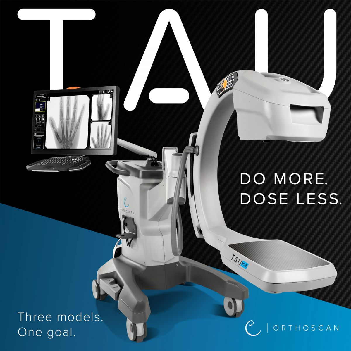 Orthoscan TAU Mini C-Arm - ORTHOWORLD