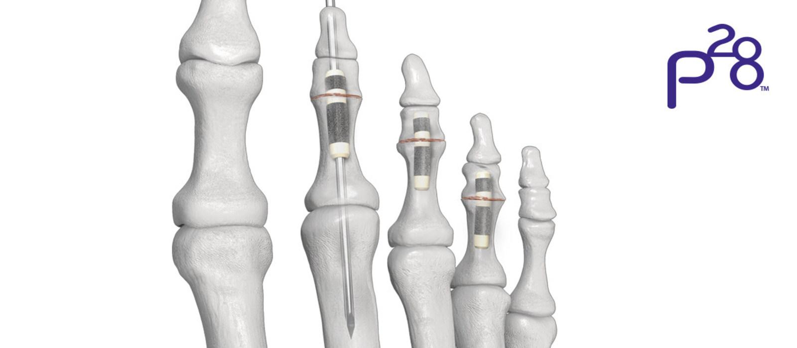 Pargon 28 HammerTube Implant System