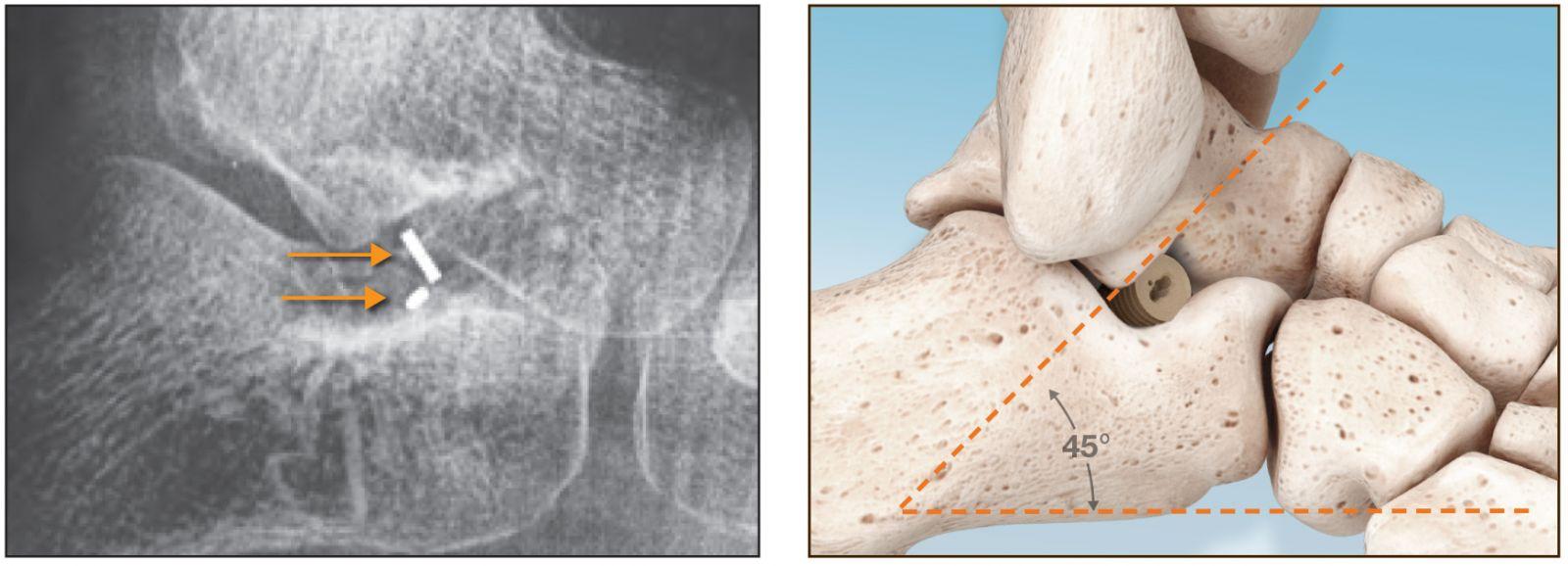 In2Bones PitStop Subtalar Implant - ORTHOFLASH