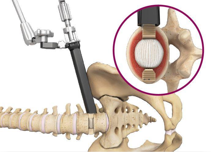 Spineology Duo Angled Instrumentation - ORTHOFLASH