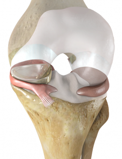 Active Implants NuSurface