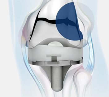MicroPort Medial Pivot Knee