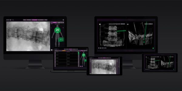 NuVasive Hits $1 Billion in Spine Sales for 2019