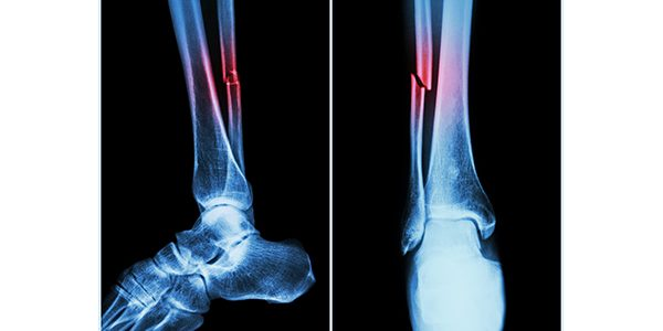 IlluminOss Medical Receives FDA Clearance for Use in Fibula Fractures