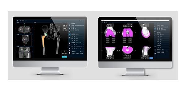 Changmugu Medical Developing Orthopedic AI and Surgical Navigation Solutions