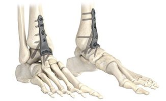 Stryker AxSOS 3 Ankle Fusion System