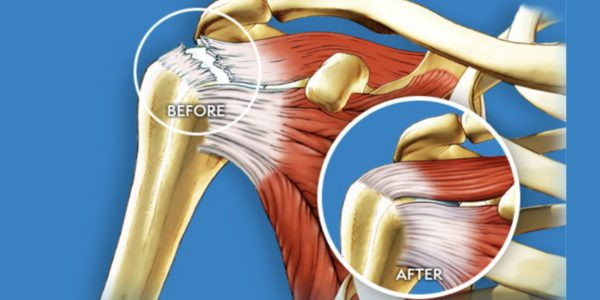Ortho Regenerative Technologies Results from Rotator Cuff Tear Repair Study