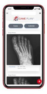 Additive Orthopaedics Game Plan
