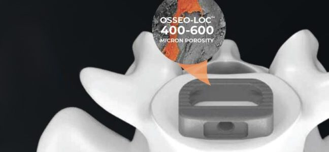 Life Spine Announces FDA 510(k) Clearance for the PLATEAU-A Ti Anterior Lumbar Spacer System