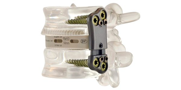 Zavation Launches Z-Span Expandable Anterior and Lateral Lumbar Plates
