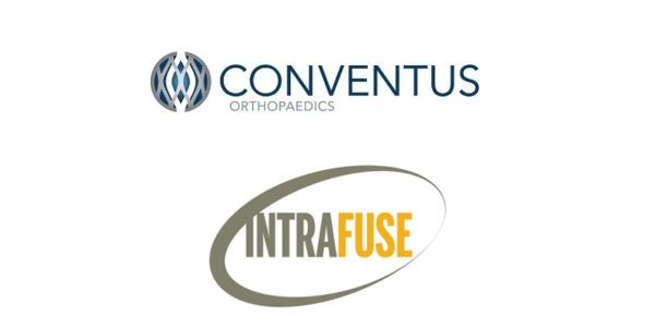 Conventus Orthopaedics Acquires Intramedullary Technology from IntraFuse