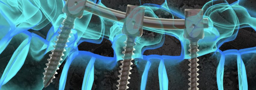 Life Spine Gains FDA Clearance for Additions to ARx
