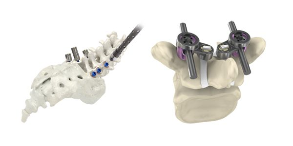 Implanet and SeaSpine Gain FDA Clearance of the Mariner Cap System