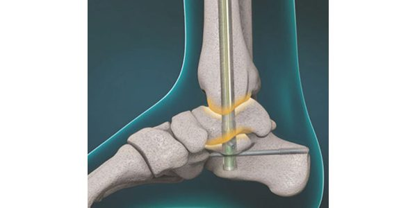 MedShape Receives ICD-10-PCS Codes for Sustained Compression Internal Fixation