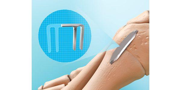 MedShape Launches DynaClip Forte NiTiNOL Bone Fixation