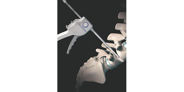 Orthofix Launches O-GENESIS Graft Delivery System