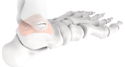 Episurf Medical receives CE Mark for Episealer Talus and Talus Osteotomy Guide