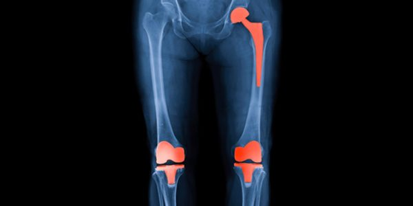 Joint Reconstruction Expected to Continue with Steady Growth