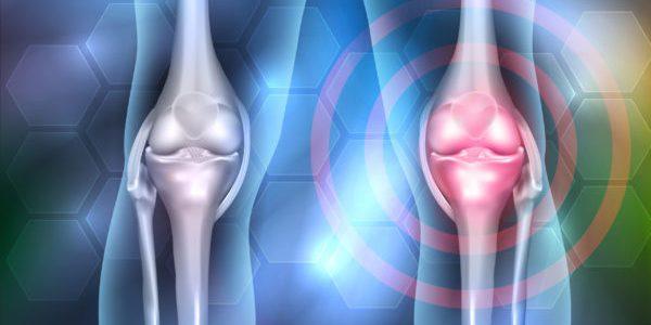 Histogen Gains Funding to Advance Biologic Knee Cartilage Regeneration
