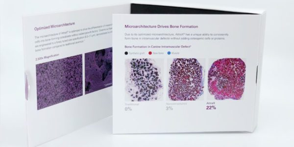 NuVasive Attrax Putty Study Results