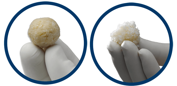 Analysis: ViviGen Cellular Bone Matrix Lowers Hospital Costs vs. rhBMP-2