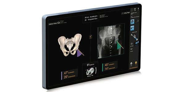 Smith+Nephew Launches RI.HIP NAVIGATION for Total Hip Arthroplasty