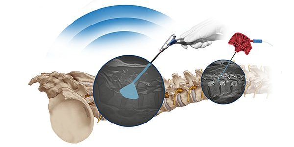 FDA Clears joimax Intracs em Electromagnetic Navigation System for Endoscopic Minimally Invasive Spine Surgery