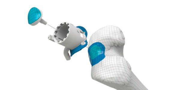 First Episealer Surgery Performed in the U.S.