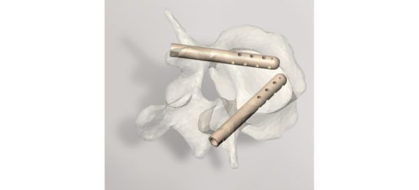 Hyprevention Raises New Financing to Commercialize Spinal Implant