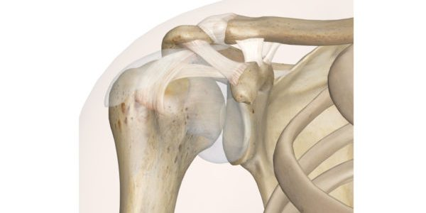 LimaCorporate Completes First Total Shoulder with Smart SPACE 3D Positioner