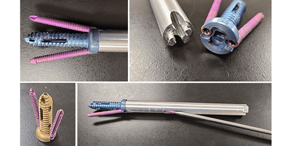 Inspired Spine Gains FDA Clearance for Trident SI Joint Screw