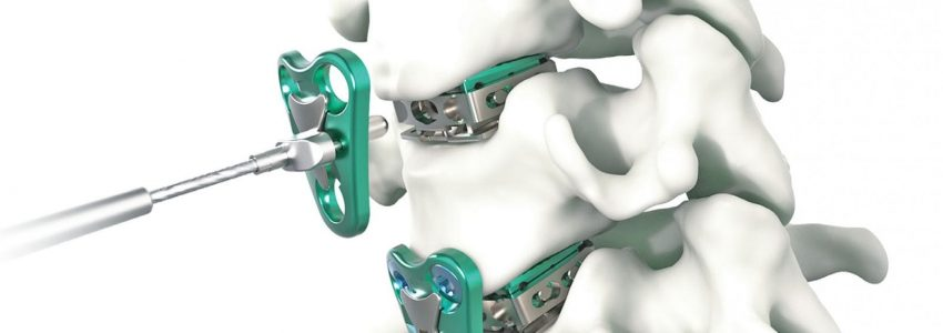Atlas Spine Launched V3 Guided Segmental Cervical Plate