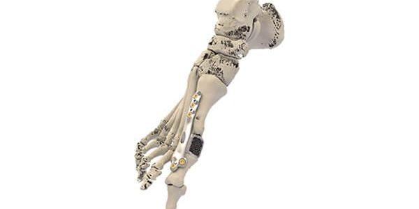 Additive Orthopaedics Debuts Patient Specific Implant Locking Technology