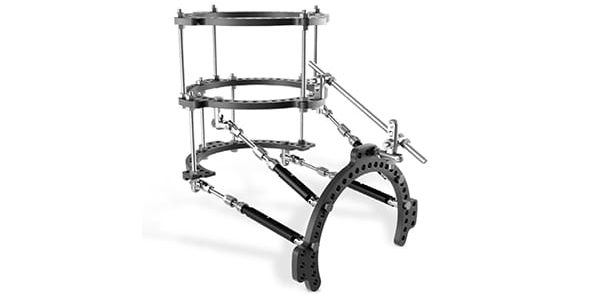 Carbon22 Receives FDA 510(k) Clearance for FusionFrame Ring Lock System