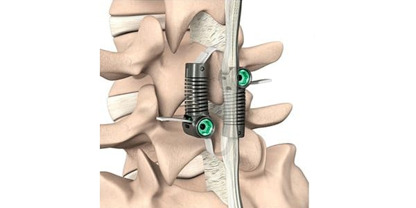 Empirical Spine Completes Enrollment in LimiFlex Trial