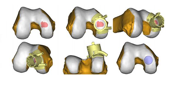New U.S. Patent Approval for Episurf Medical 3D Visualization