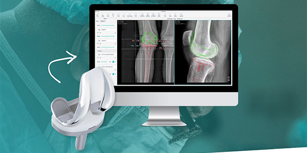 GOeasy Signs Agreement for AI Pre-Op Planning