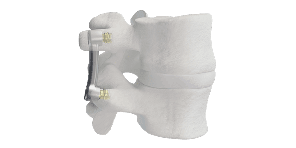 Nexus Spine Launches Novel Spinal Implants