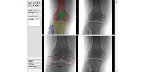 RSIP Vision Launches Knee Segmentation AI Module