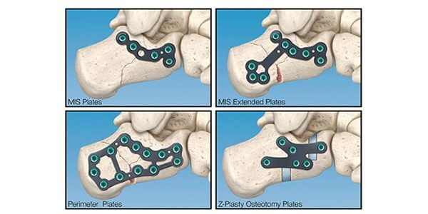 In2Bones Introduces CoLink Cfx Calcaneal Fixation