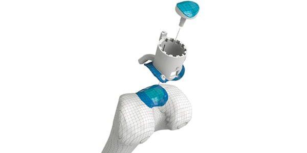 Study Results: Episealer Implant Survival Rate