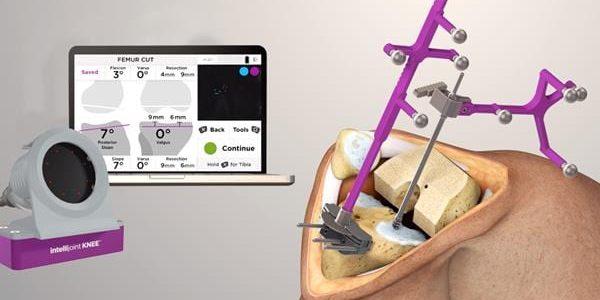 Intellijoint Surgical Launches Intellijoint KNEE Navigation
