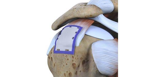 Smith+Nephew's REGENETEN Implant Gains CE Mark