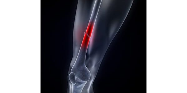 IlluminOss Medical Receives FDA Clearance for Use in Femur, Tibia Fractures to Support Hardware