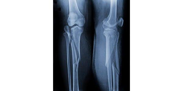 Bone Therapeutics Kicks Off ALLOB Tibial Fracture Study