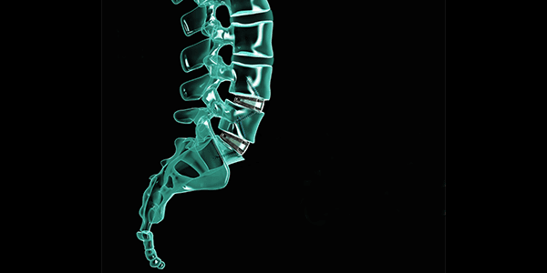Axis Spine Technologies Completes £2.2 Million Funding Round