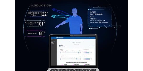 Exactech Launches Predict+ Machine Learning Software for Shoulder Replacement