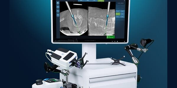 Fusion Robotics Completes First Spine Procedure